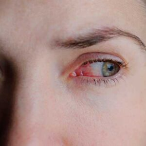 Mal de Ojo: ¿Qué es y cómo curarlo?